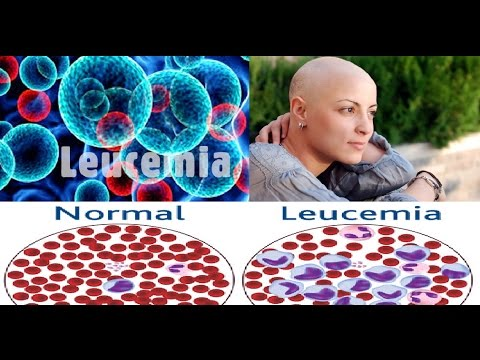 Potente Jugo Natural , Para Matar el Cáncer de la Leucemia, PRUEBALO