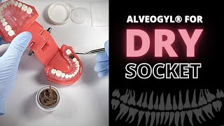 What is Dry Socket? Top dentist says how to Prevent It! | Atlanta Dental Spa (2019).