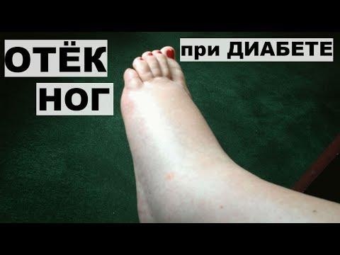 ОТЕК НОГ ПРИ САХАРНОМ ДИАБЕТЕ.Лечение отека ног.
