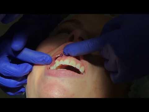 Хирургическая стоматология — Википедия