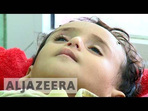 UN agrees to send war crimes investigators to Yemen