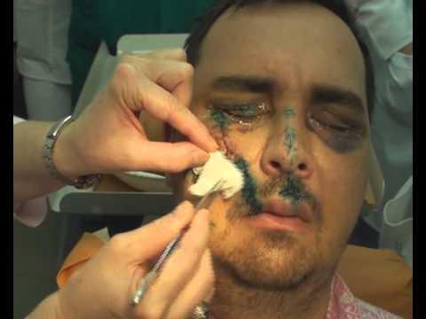 Перелом верхней челюсти Симптомы и лечение перелома