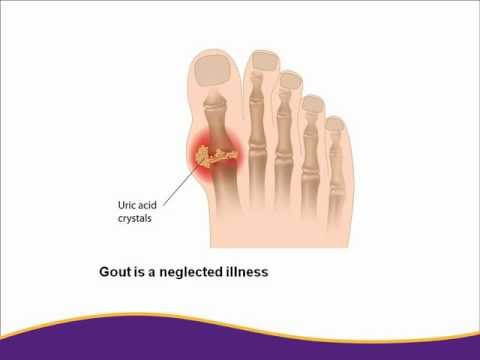 The Link between Gout Heart Disease