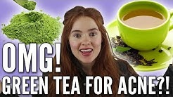 hqdefault - Can Green Tea Cure Acne