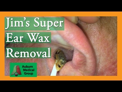 Super Ear Wax Removal with Cerumen-y Goodness | Auburn Medical Group