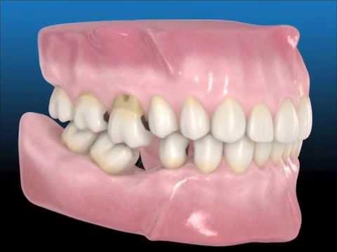 Las consecuencias de la pérdida dentaria ¿Por qué es