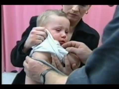 Прививка корь-паротит-краснуха - правила иммунизации, виды