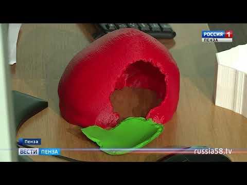 В больнице имени Бурденко освоили технологию изготовления протеза черепа