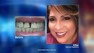 Replacing Missing Teeth with Dental Implants with South Houston dentist Luis T. Craig, DMD