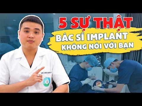 5 Sự Thật Bác Sĩ Implant không nói với Bạn - Cấy Ghép Răng Implant 2020