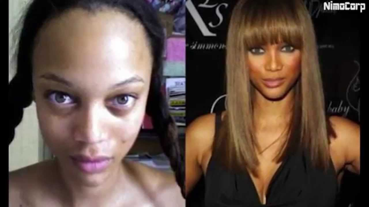Plastic surgery disasters celebrity babies