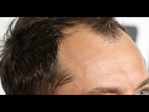 Best hair loss treatment 2017
