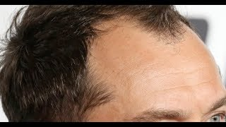Best hair loss treatment 2018 - How I stopped my hair loss naturally