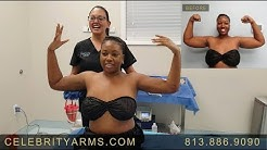 Celebrity Arms™ LIPO-LIFT -26 | Ultra-Complete Arm Liposuction | Experts Drs Su and Gruber