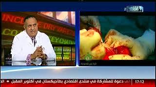 الناس الحلوة | الاورام الليفية هل تؤدى إزالتها إلى إزالة الرحم مع دكتور عبد المعطى السمنودى