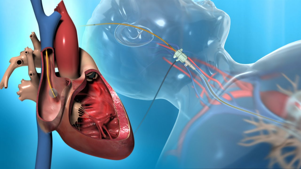 Right Heart Catheter For The Diagnosis Of Pah