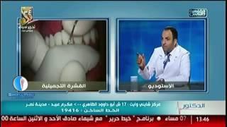 حقيقة القشرة التجميلية - دكتور شادي علي حسين - مركز طب أسنان شايني وايت