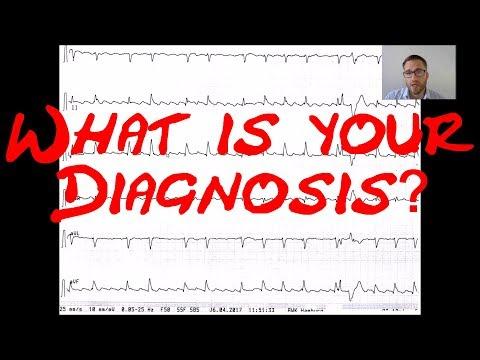 Cardiology Echo & ECG Quiz/Case: What is your Diagnosis? Infarction? Atrial Flutter? Myocarditis?