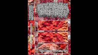 Fentanyl Surprise - Accident Of Nature CS FULL EP (2016 - Goregrind / Mincecore)