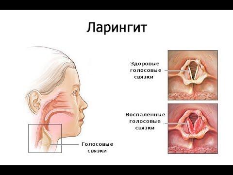 Острый и хронический фарингит - Болезни оториноларингологии