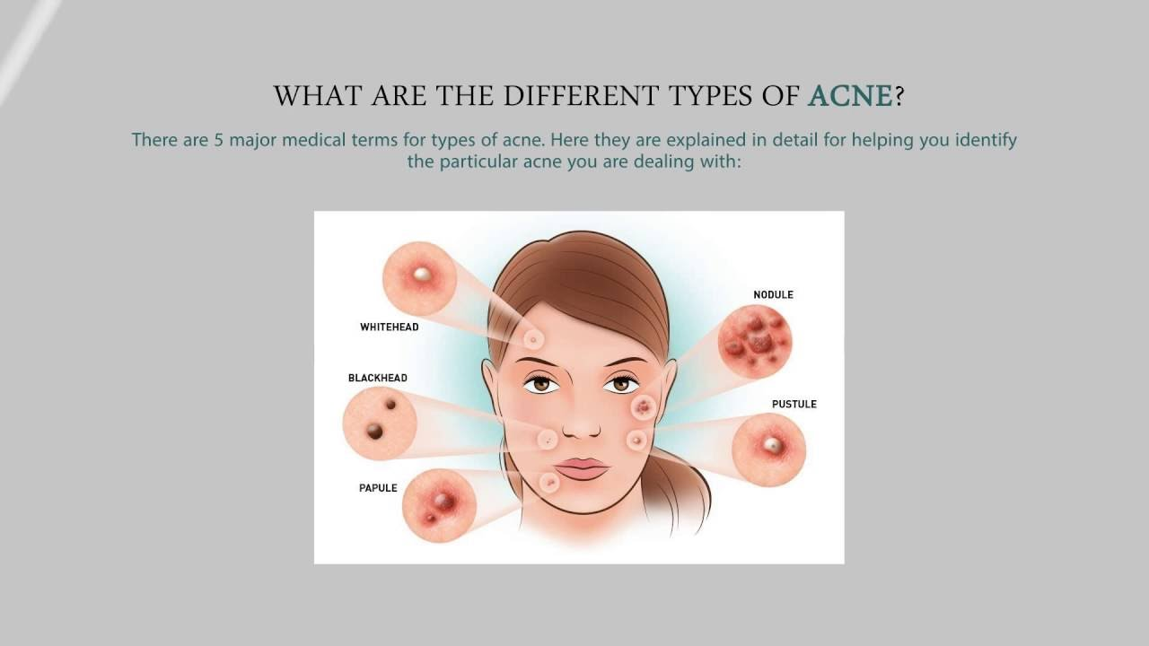 Hormonal Acne Diagram Database Visio Template Different Types Of How To Stop Youtube