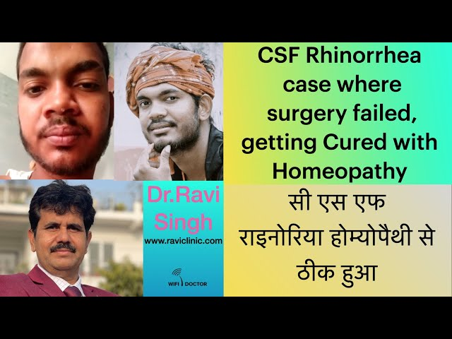 CSF Rhinorrhea case where surgery failed, getting Cured with Homeopathy