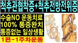 척추관협착증! 척추전방전위증! 통증완치운동영상! spi…