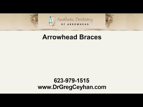 Arrowhead Braces | Aesthetic Dentistry of Arrowhead
