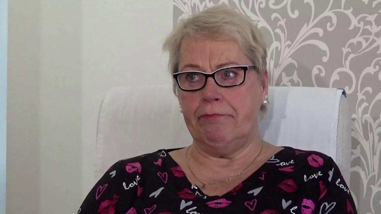 Akromegalia - YouTube