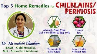 Top 5 Home Remedies for Chilblains (Perniosis)- Natural Treatment