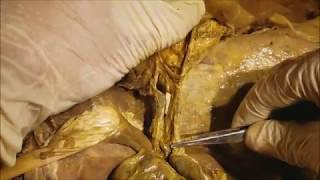 Celiac Trunk-Portal Vein-Bile Duct Surgical Dissection - Sanjoy Sanyal