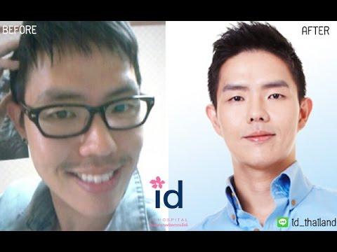 รีวิวศัลยกรรมขากรรไกร (ศัลยกรรมแก้ปากยื่น ปากเจ่อ)ของคุณ ควอน จิน ฮัน โรงพยาบาลไอดี ตอนที่2)