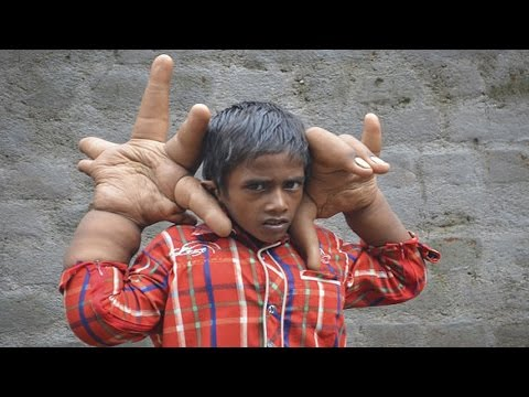 Indian Boy Born With Gigantic Hands- Rare Condition