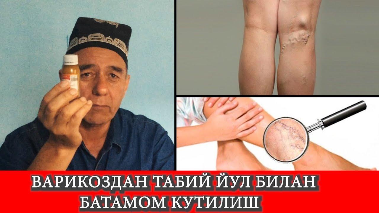 aplicația zhivitsa cu varicoză