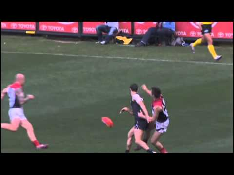 Terrible Broken Leg Injury to Melbourne Demon James Strauss