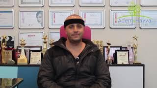 Transplante Capilar FUE Turquia - Adem & Havva Hair Transplant Center