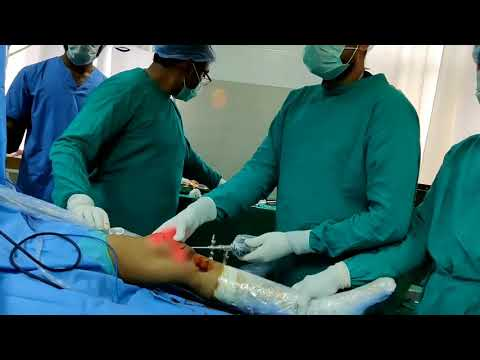 Arthroscopic Anterior Cruciate Ligament ACL Reconstruction