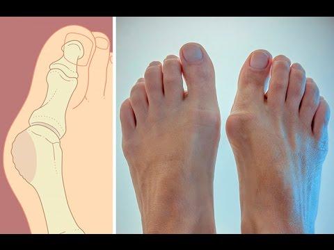 Вальгус от косточки на ноге