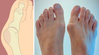 видео косточки на ногах удаление