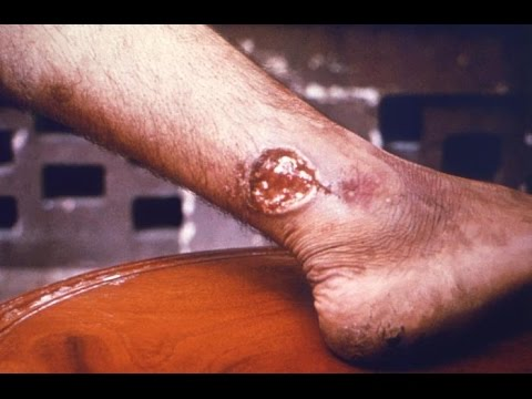 Cutaneous Leishmaniasis explosion: An interview with Dr Peter Hotez