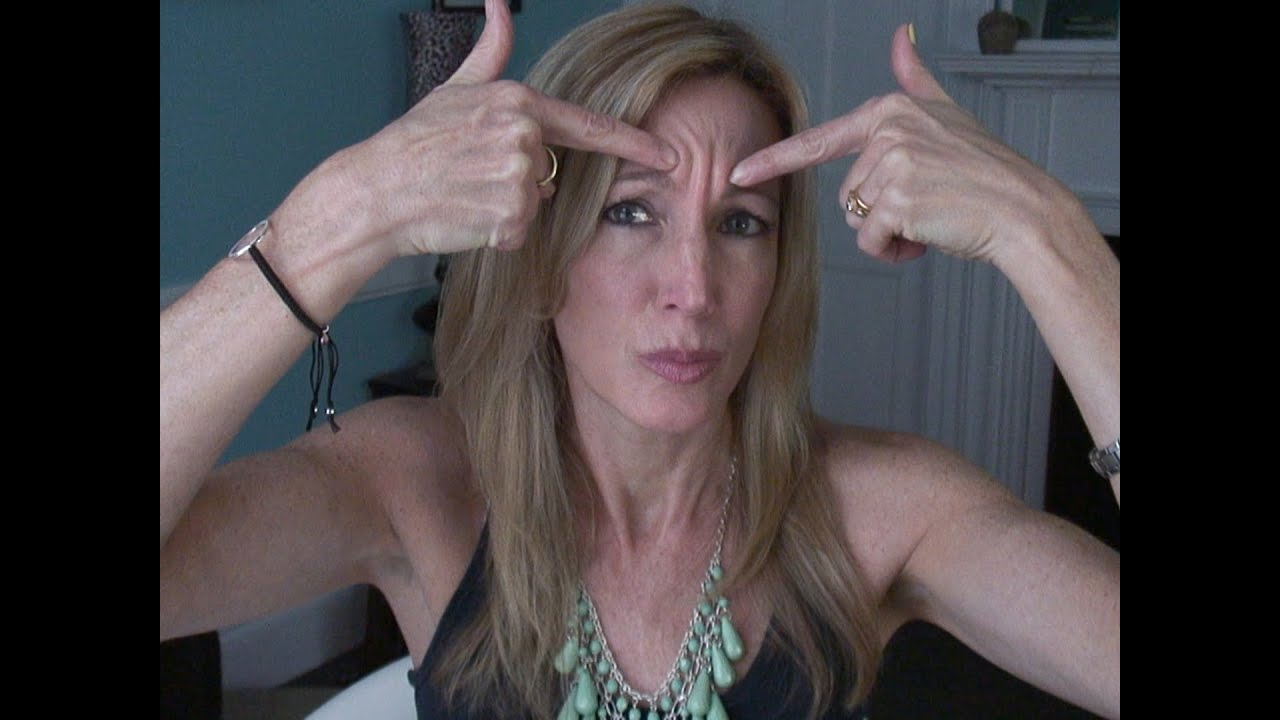 my experience with botox for forehead wrinkles - youtube