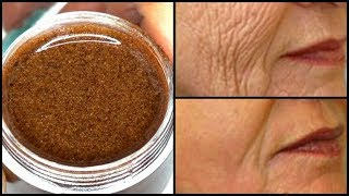 APPLY 2 DROPS AT NIGHTS TO GET RID OF WRINKLES, UNDER EYE, FOREHEAD ,MOUTH AND NECK Khichi Beauty