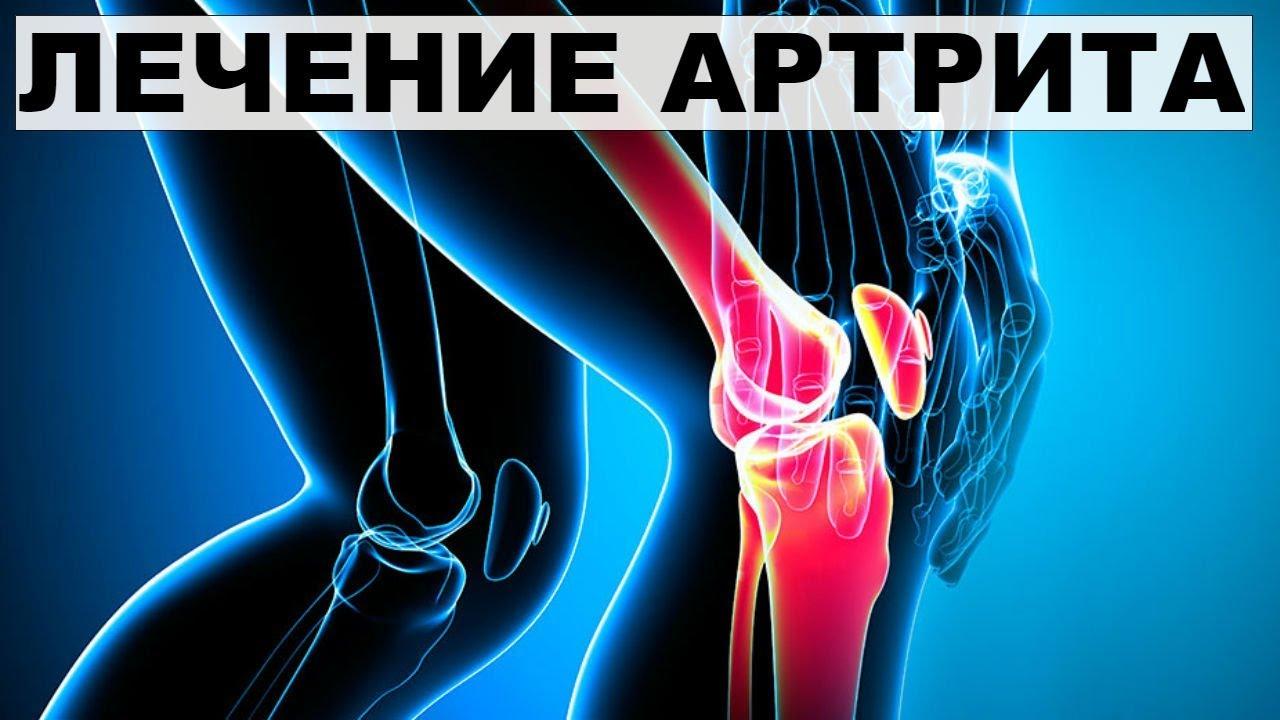 Лечение на ревматоиден артрит и облекчаване на болката в краката