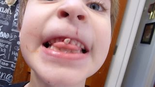 Ivan's NASTY loose tooth! Disgusting! Do not watch!