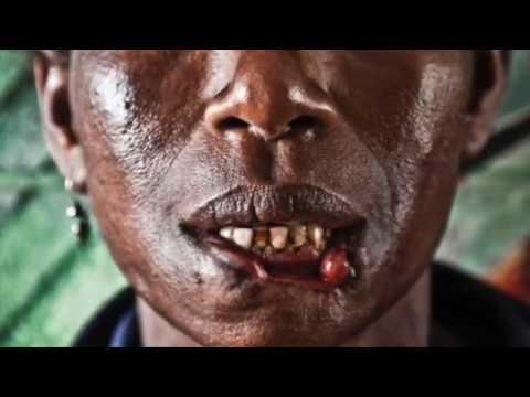 Living Cannibal Victim Papua New Guinea