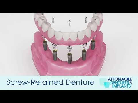 Demo: How Do Screw-Retained Implant Dentures Work?