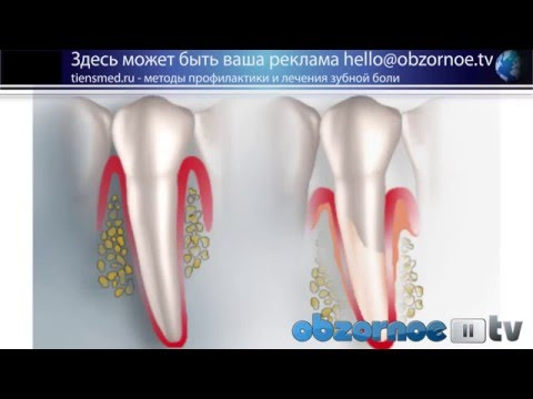 Почему болит здоровый зуб и что делать