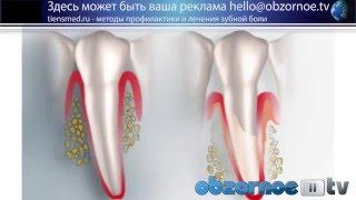 видео Болит зуб, что делать. Народные советы, рецепты, список лекарств