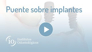 Gambar cover Puente sobre implantes