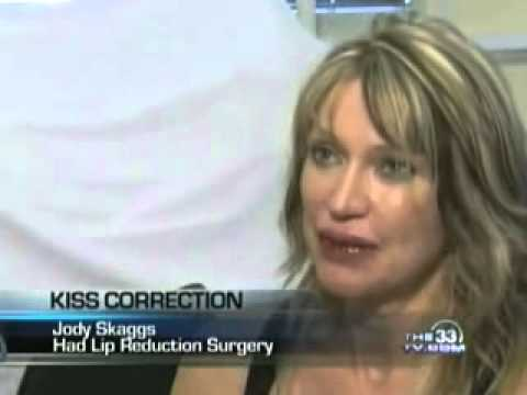 Lip Revision/Correction Story Featured on the CW 33 News